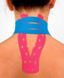 тейпирование шеи, схема наложения