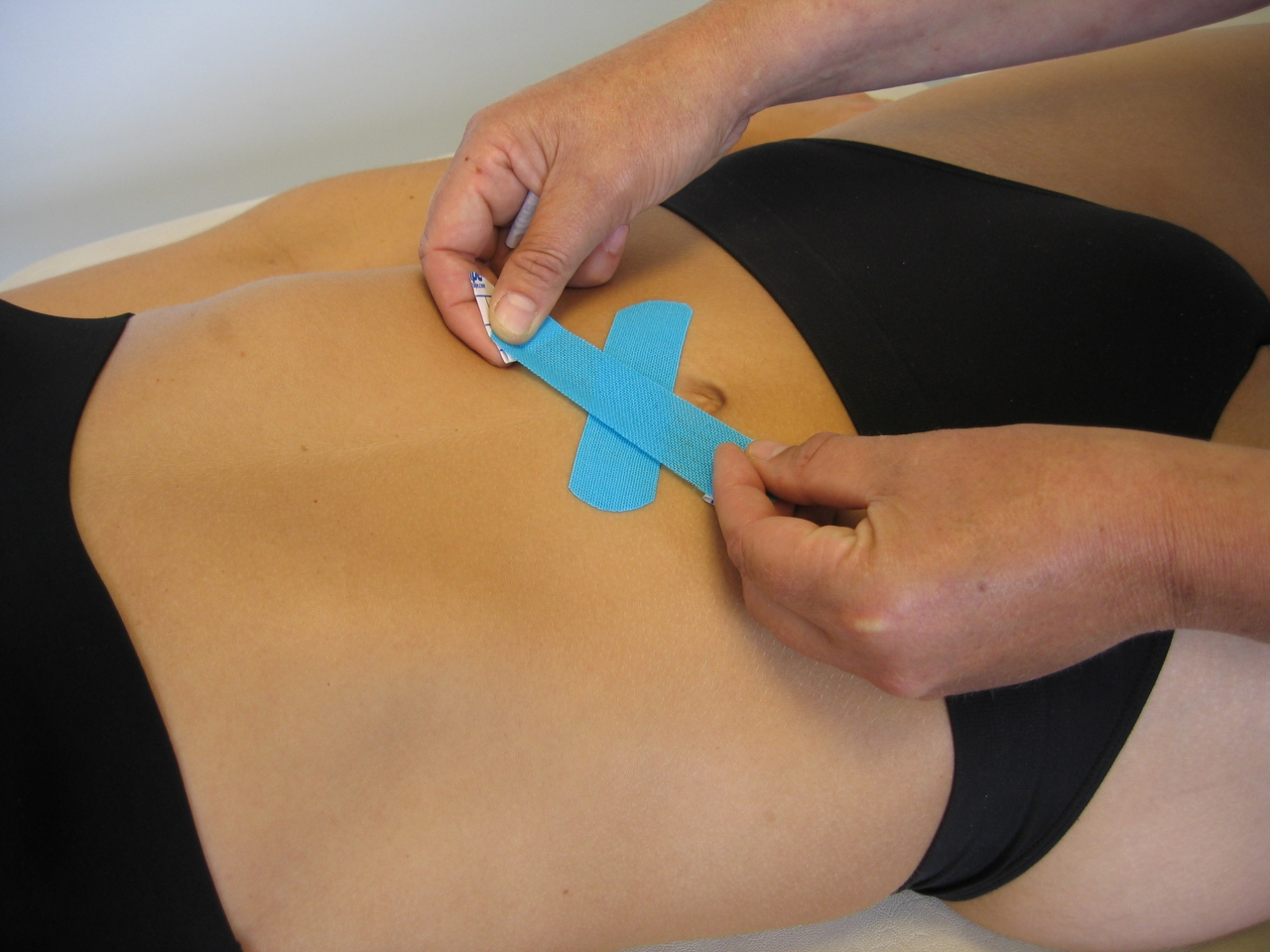лечение диастаза, схема тейпирования